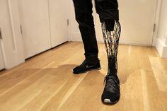 Empresa cria próteses de titânio impressas em 3D com design futurista