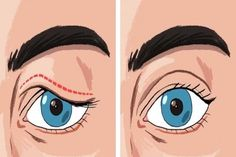 If you are struggling with saggy eyelids, then you must have gone through the frustrating process of applying make-up. The droopy eyelids make you look older, tired, and weary. Saggy Eyelids, Eyes Problems, Face Yoga, Anti Aging Tips, Look Younger, Skin Tightening, Tips Belleza, How To Get Rid, Health And Beauty