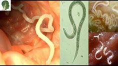 7 Herbs That Treat Internal Parasites Fast