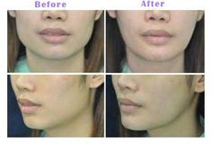 Jaw-Reduction-before-after-newyork