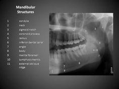 Dental Radiographic Landmarks for Pano. Finals help - Another! Dental Assistant Study, Dental Hygiene Student, Dental Humor, Dental Procedures, Dental Hygienist, Oral Hygiene, Dental World, Dental Life, Smile Dental