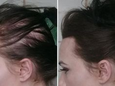 Günde Bir Çorba Kaşığı Elma Sirkesi Karın Yağlarınızdan Kurtulmanıza Yetiyor Healthy Beauty, Health And Beauty, Beauty Care, Hair Beauty, Facial Yoga, Back Pain Exercises, Good Health Tips, Natural Health Remedies, Fitness Transformation