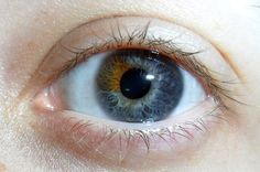 In sectoral heterochromia one part of the eye is different from it's remainder. Heterochromia, in general is the result of excessive pigment. It can be inherited or caused by disease & injury.