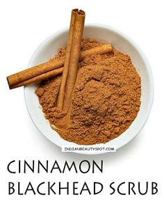cinnamon blackheads remedy