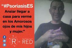César comparte su foto para #PsoriasisEs. #Psoriasis #ArtritisPsoriásica #Piel #Skin