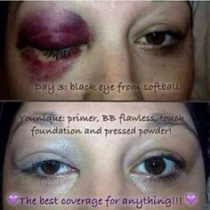 Blemishes to cover?  Scars to hide? Tattoos to cover?  We have the perfect 3 step solution ❤️