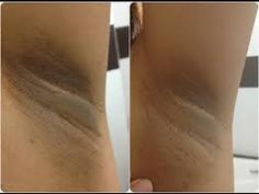 Black Skin Care Advice: How to Lighten the Underarms