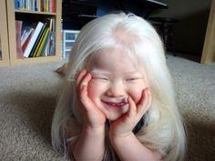 Albino Japanese girl is Adorable. Beautiful Children, Beautiful Babies, Beautiful People, Albino African, Albino Girl, Melanism, Interesting Faces, People Around The World, Japanese Girl