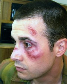 Bruise and road rash makeup featuring 90s teen heart throb, Freddie Prince Jr.     Makeup by Allison Gordin