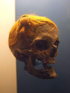NSFW: Osterby Man: bog body of which only the skull and hair survive. The hair is unusually well preserved and is tied above the right temple in a Suebian knot. 70-220 AD, Germany