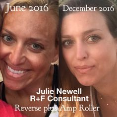 Melasma treatment sun damage cure clear skin amazing results Rodan and Fields Reverse Regimen SkinCare