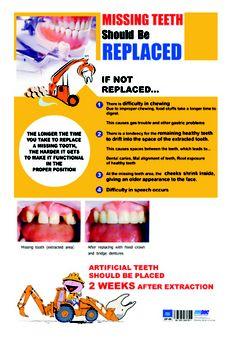 DP 13 Dental Wallpaper, Dental Posters, Missing Teeth, Clinic, Tooth, Teeth