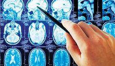 ΥΓΕΙΑΣ ΔΡΟΜΟΙ: Γλαύκωμα και στον εγκέφαλο