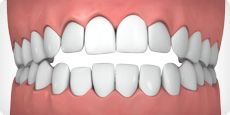 An open bite often occurs when some teeth are unable to make physical contact with the opposing teeth for a proper bite. Most often caused by a genetic abnormal jaw structure or excessive thumb sucking, an open bite can cause poor or painful chewing and even speech impairment. It can also lead to greater issues like thermo-mandibular joint disorder (TMJ). Invisalign can effectively treat an open bite, click to find out if it's right for you.