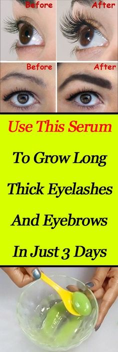 Use This Serum to Grow Long Thick Eyelashes And Eyebrows In Just 3 Days | A Beauty | Page 2
