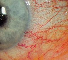 Ocular hyperemia: That's just eyespeak for dilated blood vessels within the gelatinous membrane called the conjunctiva on top of the white part of your eye. Pacific Rim, Foto Macro, The Wicked The Divine, Body Photography, Blood Vessels, Human Anatomy, Human Body, Human Eye, Just In Case