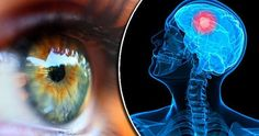 Πέντε σοβαρές παθήσεις που φαίνονται στα μάτια