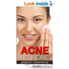A Proven GuideTo Acne Treatment, Acne Cure, Acne Remedies And Acne Diet For Perfect Clear Skin  This book contains proven steps and strategies on how to keep acne completely under control. This book lets you know about the facts behind acne myths, the skincare regimen you should follow to prevent acne, and the food you should or should not eat to avoid breakouts. Furthermore, you will learn about medical, laser and surgical modalities you can undergo for an acne-free life.