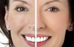 La mejor mascarilla casera antiarrugas es, sin duda, la que se prepara con ingredientes naturales regeneradores capaces de prevenir el envejecimiento celular y corregir sus síntomas. Te enseñamos cómo elaborar la mejor mascarilla casera antiarrugas y cómo aplicarla de manera cómoda y práctica.