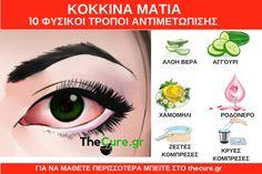 Πως να αντιμετωπίσετε το πρόβλημα με τα κόκκινα μάτια. Δείτε 10 απλούς φυσικούς τρόπους. #Υγεία #Μάτια
