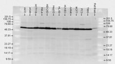 Western blot analysis of in multiple human and rat brain cell lysates using a dilution of Heat Shock Protein, Thing 1, Rat, Computer Mouse