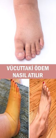 How to remove edema in the body? - Sedef - - How to remove edema in the body? Beauty Makeup Tips, Beauty Make Up, Beauty Care, Cellulite Oil, Bum Workout, Healthy Life, The Cure, Health Fitness, Weight Loss