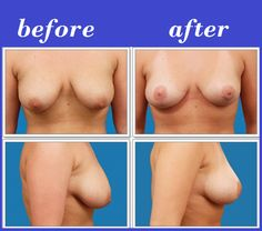 Breast Lift Photos