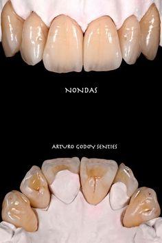 Dental Anatomy, Dental Technician, Teeth Shape, Dental Art, Smile, Animals, Medicine, Dental Laboratory, Porcelain Ceramics