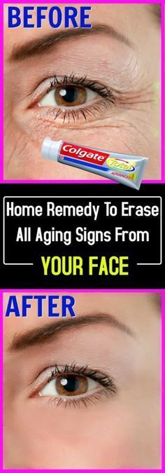 Home Remedy To Erase All Aging Signs From Your Face #face #aging #beauty #hair #health #remedy