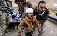 Photos of the day - March 2 2017A boy injured in a mortar...  Photos of the day - March 2 2017  A boy injured in a mortar attack walks toward an ambulance after being treated by medics in a field clinic as Iraqi forces battle with Islamic State militants in western Mosul Iraq; Runners clear a fence in the back straight at Taunton Racecourse in Taunton England; Tour guides wearing traditional Chinese dress practice smiling by biting chopsticks at Qingming Grand-River Park in Kaifeng central…