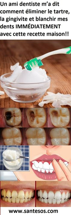 Are 5 Tips On How To Reverse Cavities & Heal Tooth Decay Naturally! Here Are 5 Tips On How To Reverse Cavities & Heal Tooth Decay Naturally! Here Are 5 Tips On How To Reverse Cavities & Heal Tooth Decay Naturally! Gum Health, Teeth Health, Healthy Teeth, Dental Health, Healthy Tips, Oral Health, Eat Healthy, Dental Care, Dental Hygiene