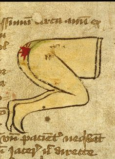 This medical treatise from 14th century England offers a marginal drawing illustrating a surgical procedure.