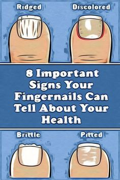 8 Important Signs Your Fingernails Can Tell About Your Health Health And Wellness Quotes, Health And Fitness Articles, Health Tips For Women, Wellness Fitness, Health Advice, Health And Wellbeing, Health Fitness, Fitness App, Natural Health Tips