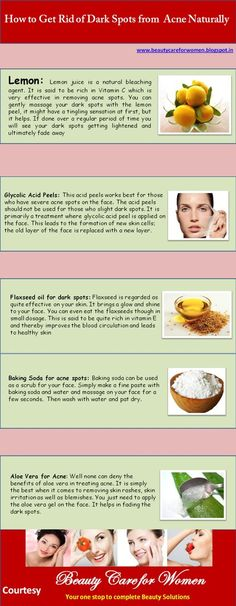 How To Get Rid of Dark Spots from Acne ~ edna [ INFOGRAPHIC ] | Infographic File #brown spots on face -  #masks for acne