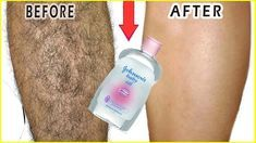 In 3 Days Remove Unwanted Hair Permanently, No shave No wax, Removal Facial & Body Hair Permanently