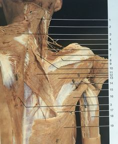 Deeper muscles of shoulder and arm in dorsal aspect and right side after cutting… Muscle Anatomy, Body Anatomy, Human Anatomy, Medicine Notes, Gross Anatomy, Latissimus Dorsi, Musculoskeletal System, Muscular System, Medical Anatomy