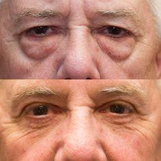 Upper and lower eyelid lift (blepharoplasty)