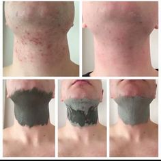Glacial Marine Mud Mask *Great for blackheads and pores * Helps clear acne and spots *For both men and women Leaving skin, Smooth. Homemade Acne Treatment, Oily Skin Treatment, Scar Treatment, Skin Treatments, Epoch Mud Mask, Marine Mud Mask, Glacial Marine Mud, Skin Care Regimen, Nu Skin Mud Mask