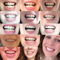 The ultimate braces style guide educational infographics my smile transformation with damon braces they are finally off solutioingenieria Gallery