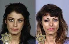 Methamphetamines user first pictured in 2001, left, and then in 2008
