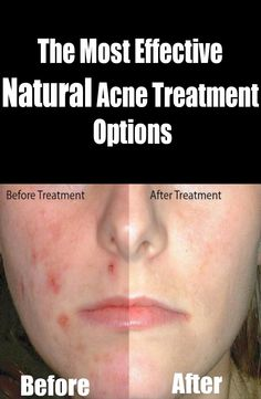 The Most Effective Natural Acne Treatment Option | Nature Is The Answer