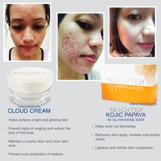 NWORLD PRODUCTS TEST #Nlighten Kojic Papaya #Nlighten Cloud Cream Pimple Marks, Pimples, Facial Cream, Dark Spots, Freckles, Glowing Skin, Whitening, Health And Beauty, How To Remove
