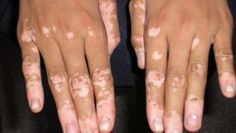 Vitiligo Definition Vitiligo is a disease that causes loss of skin color . How extensively vitiligo can affect a person's skin and how sev. What Is Vitiligo, Vitiligo Skin, Natural Treatments, Natural Cures, Skin Grafting, Skin Spots, Chronic Stress, Massage Therapy, Herbal Remedies
