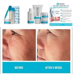 Redefining your skin!!