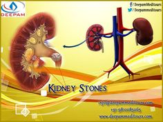 If you are experiencing pain from blockages such as kidney stones, #gallbladder_stones, or stones found in the urinary bladder or ureters, you should check out the Best #Kidney_Stones Removal Package in India