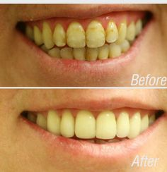 It has been utilized to deal with glabellar lines (the appearance of severe frown lines between the eyebrows), extreme underarm sweating, spasticity, muscle disorders, and even weight problems. Teeth Health, Oral Health, Dentist Nyc, Celebrity Dentist, Muscle Disorders, Nose Surgery, Dental Services, Dental Implants, Dental Hygienist