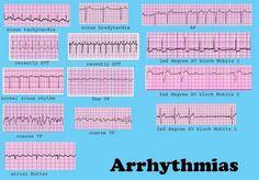 Dysrhythmia Cheat Sheet | Cardiac Dysrrhythmia (aka Arrhythmia And Irregular Heartbeat ...