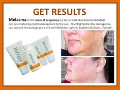 Anyone else recognize this? I, too, suffered from melasma (dark brown spots) on my forehead/cheek/nose area after having my 2nd daughter...thank goodness for our REVERSE regimen! THERE IS A SOLUTION! Go here: https://noellebuffer.myrandf.com/Shop/Reverse