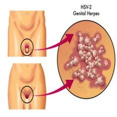 Hookup someone who has genital herpes