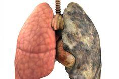 За пречистване на белите дробове от никотин ще ви предложим рецепта от чудата народна медицина, която наистина действа Пушачите в страната са госта голям процент и макар да знаят, че пушенето вреди на здравето, те се отдават на порока. Няма да съдим никого, а ще предложим лесничка домашна рецепта за пречистване на дробовете от катраните...